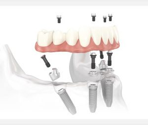 Prosthetic Tooth