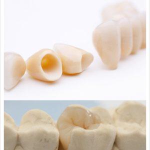 Restorative Tooth Treatment