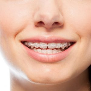 Orthodontics (Tooth and Jaw Disorder Treatments)
