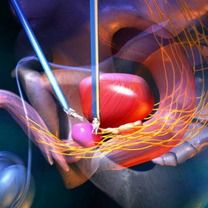 Prostate Cancer Surgery