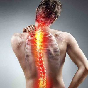 Low back and Neck Hernia