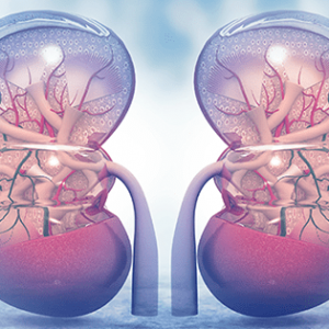 Kidney Transplant Center
