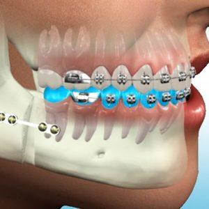 Oral , Dental and Maxillofacial Surgery