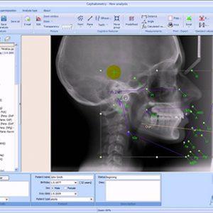 Oral Diagnosis - Radiology