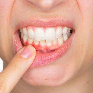 Periodontology( Gum Disease)
