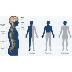 Hemiplegia – Stroke Rehabilitation