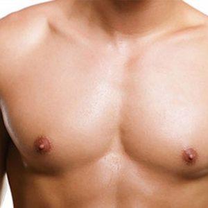 BREAST REDUCTION IN MEN (GYNECOMASTY)