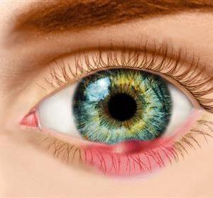 Eye Health & Diseases