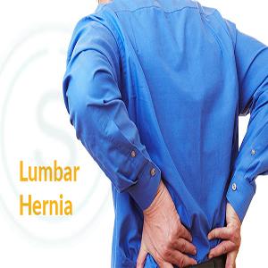 Lumbar Hernia Treatment