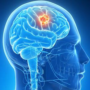 Neurosurgery (Neurosurgery)