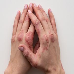 Dermatology (Skin Diseases)