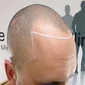 Hair Transplant Center
