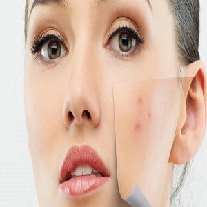 Skin and venereal diseases (dermatology)