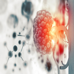 Urologic Diseases