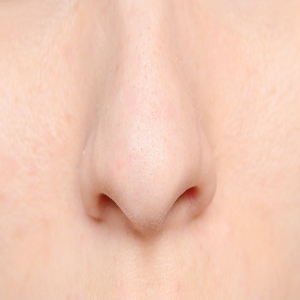 Nasal Division Curvatures (Deviation) Dryness