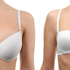 Breast reduction aesthetics