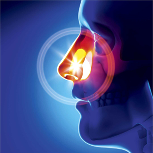 Cancer of the nasopharynx (upper esophagus)