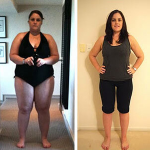Gastric Sleeve and By-Pass Surgery