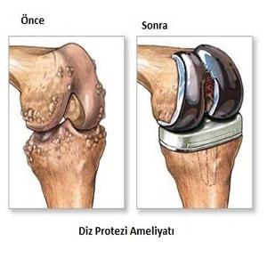 Gonartroz (Knee Calcification, Erosion of Knee Cartilage)
