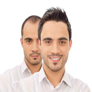 Hair Transplantation and Esthetics