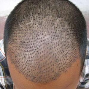 Hair Transplantation A+FUE