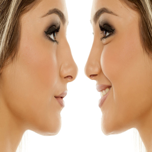 Rhinoplasty (nose aesthetics)