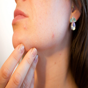 Skin and velicinal diseases (to the skin)