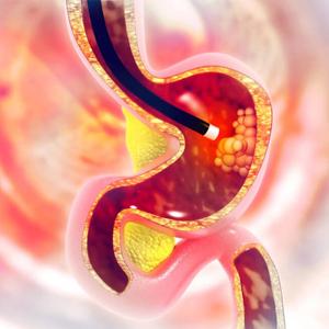 Stomach Endoscopy