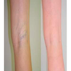 Varicose treatment (sclerotherapy)