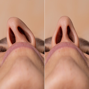 Closed Nose Surgery