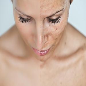 Cosmelan Spot Treatment