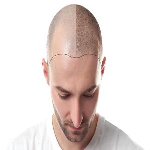 Fast-healing hair transplantation