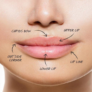 Laser Lip Augmentation