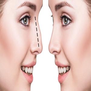 Nose Aesthetics (Rhinoplasty)