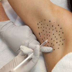 Sweating Treatment with Botox