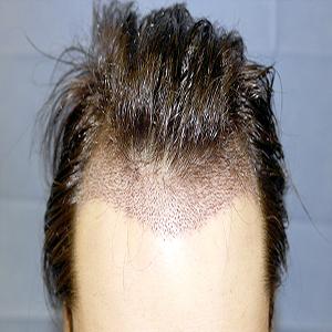 Hair transplantation without shaving (fue without shaving)