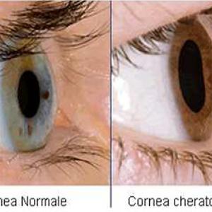 Cornea and its diseases