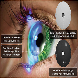 Add on smart lens therapy