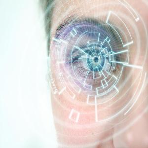 Cataract with the phaco method