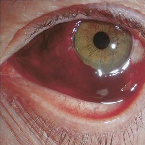 Deformed lens syndrome