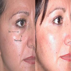 Eyelid surgery (lower lid)