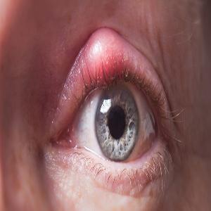 Eye tumor