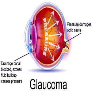 Glaucoma (eye pressure)