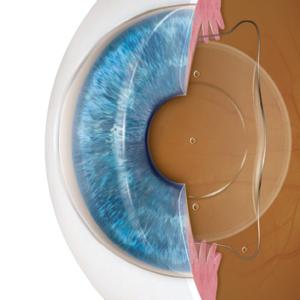 Intraocular contact lens treatment