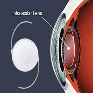 Multifocal intraocular lens (mfiol)