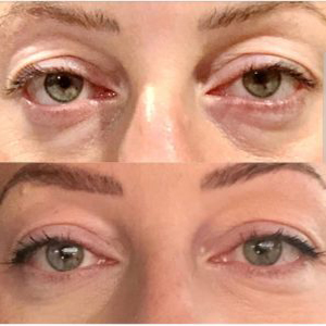 Non-surgical eyelid surgery